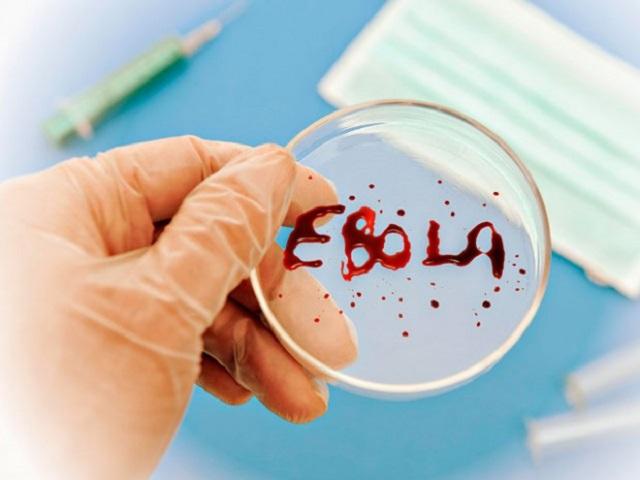В России придумали лекарство от Эболы