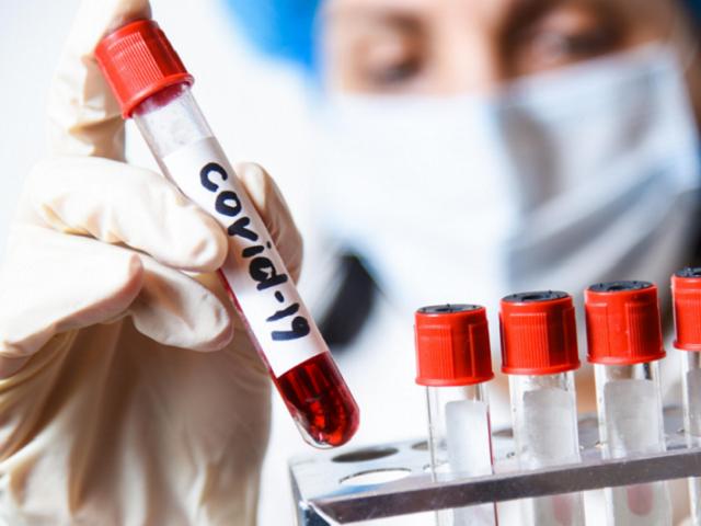 Статистика по заболеваемости COVID-19 в Челябинской области на 23 мая